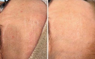 Micro Needling – Facial Rejuvenation